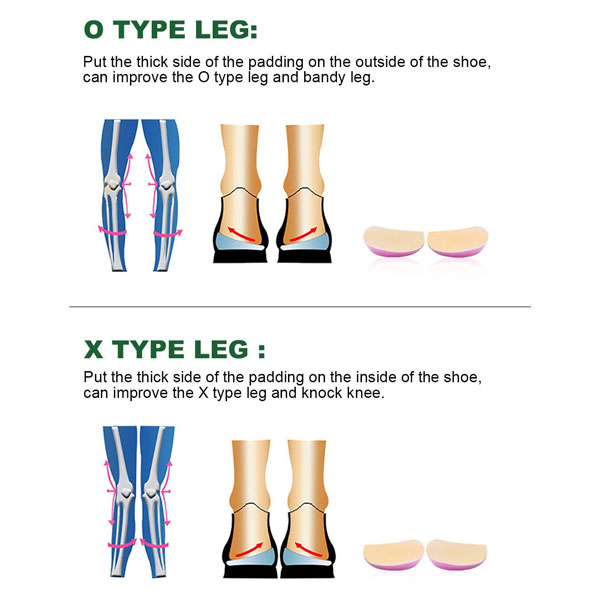 OX Type Leg Heel Inserts Orthopedic Insole Perfect Half Sphere Design for Bowlegs and Knock Knees ZG-1889