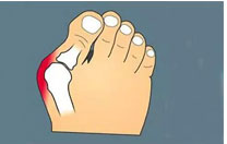 Correction Of Hallux Valgus